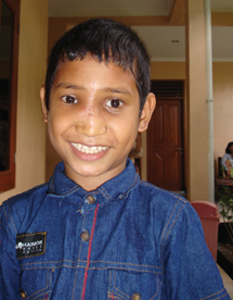 Anis, after his clef palate surgery